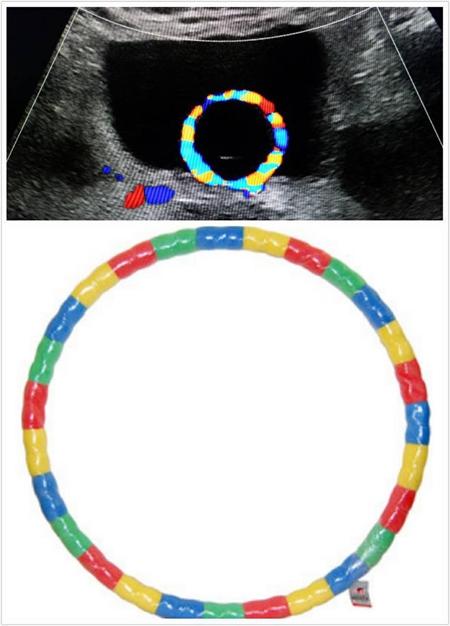 泛读:膀胱导尿管答案核心多普勒v膀胱,酷像一呼啦圈,水中呼啦圈是不2新大学英语教程说明球囊超声图片