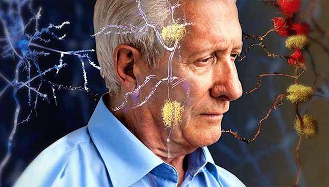 """莫让""""记忆""""付水流 有些老年痴呆可逆转"""