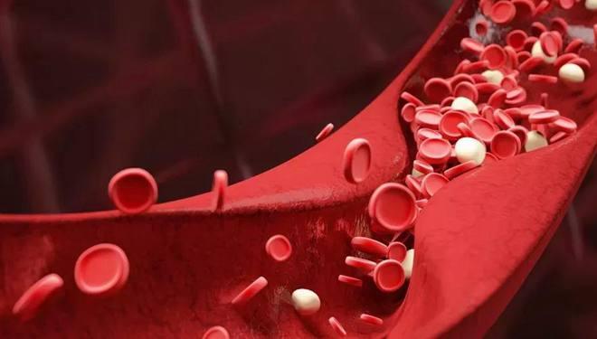 血管是如何老化的 年龄增加改变血管结构,不良生活催生硬化、血栓
