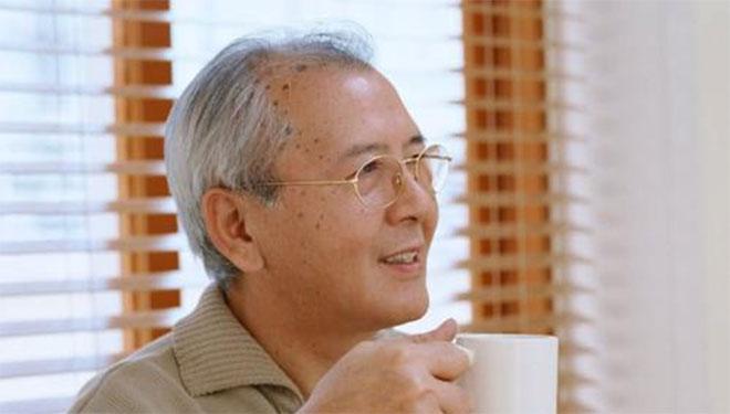 皮肤癌老年斑易混淆